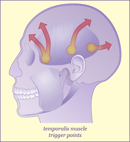 An illustration of temporalis muscle trigger points