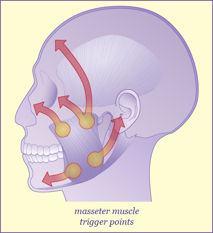 An illustration of masseter muscle trigger points