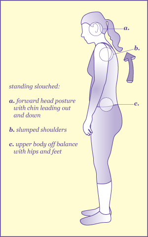 An illustrated diagram of slouching standing posture