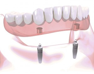An illustration of a removeable, implant-supported denture