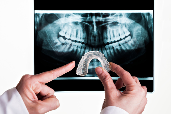 A dentist's hands hold up a mouth guard to a full jaw xray